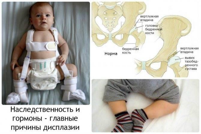 Рентгенологическая классификация врожденной дисплазии тазобедренного сустава