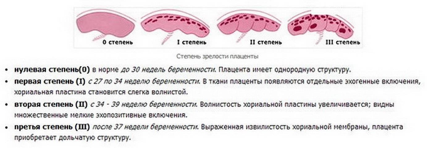 Симптомы болезни - плацентарные нарушения