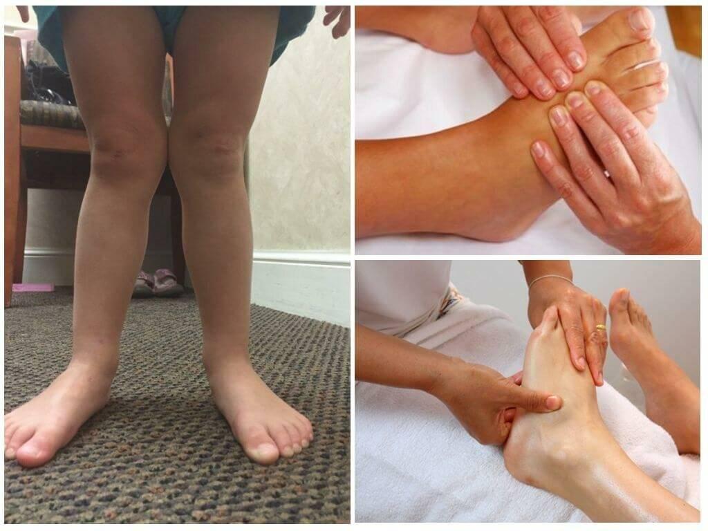 Лечение вальгусной деформации стопы у детей: массаж, упражнения, гимнастика и лфк.