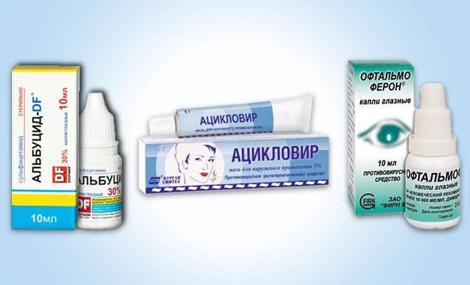 Аденовирусный конъюнктивит : причины, симптомы, диагностика, лечение   компетентно о здоровье на ilive