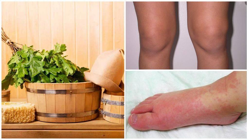Ультрафиолетовое облучение при простуде и орви