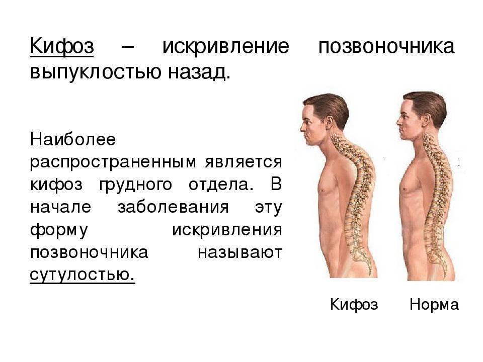 Боль в грудном отделе позвоночника | компетентно о здоровье на ilive