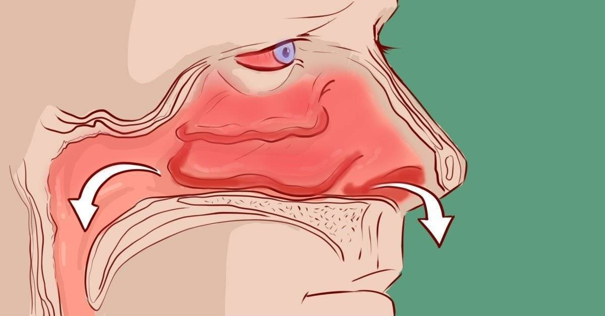 Как правильно закапывать нос?
