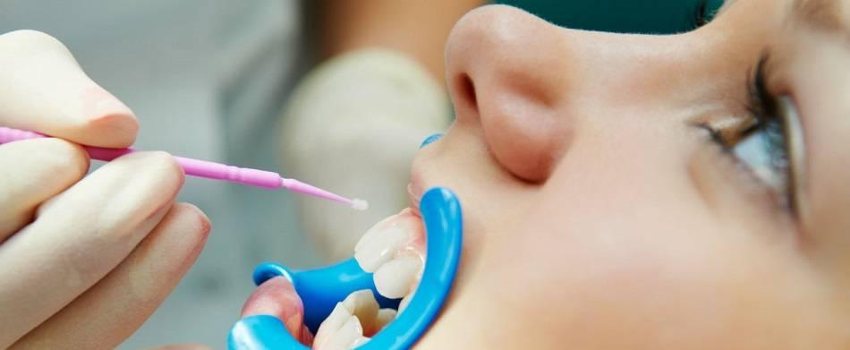Фторирование зубов - показания и методы