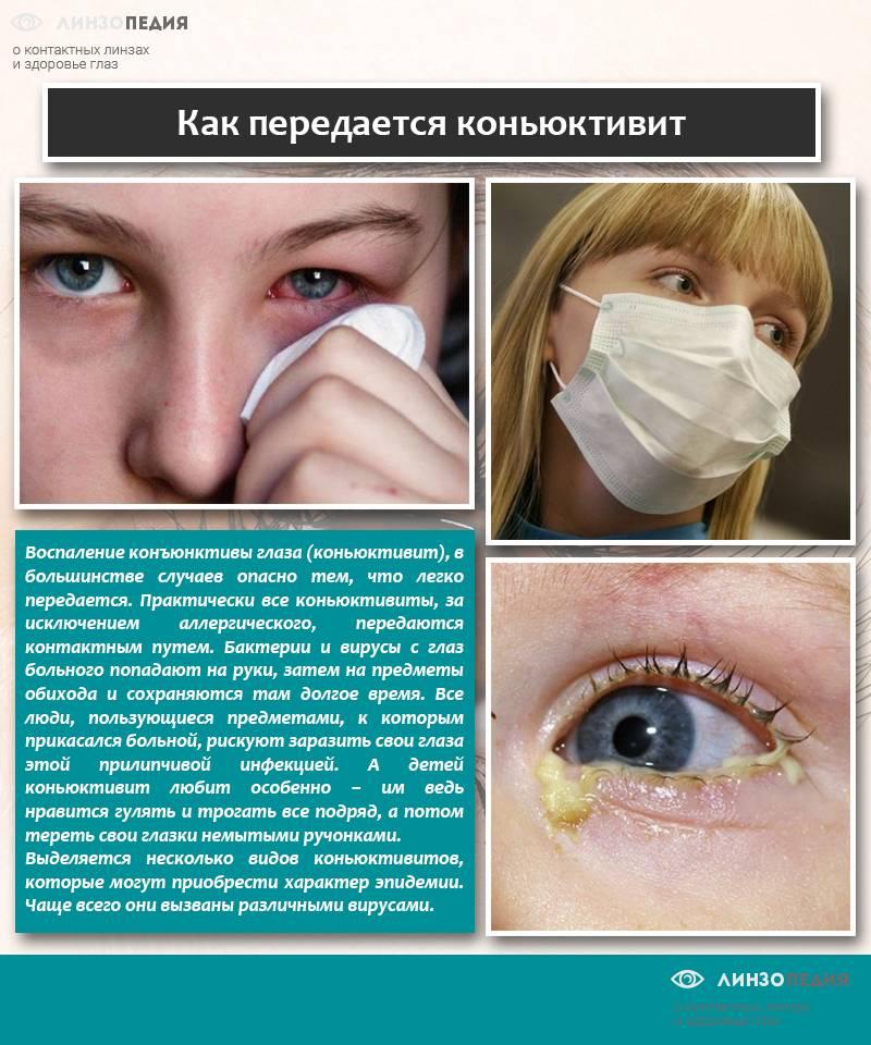 Конъюнктивит как осложнение орви - энциклопедия ochkov.net