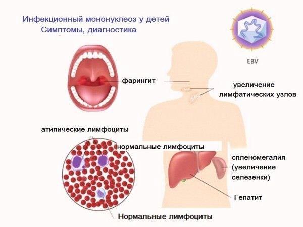 Инфекционный мононуклеоз у детей   симптомы и лечение инфекционного мононуклеоза у детей   компетентно о здоровье на ilive