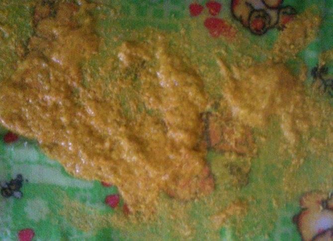 Зловонный и гнилостный запаx кала у взрослого: причины и диагностика