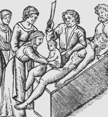 Кесарево сечение — википедия. что такое кесарево сечение