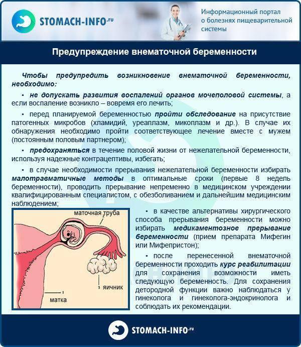 О признаках внематочной беременности