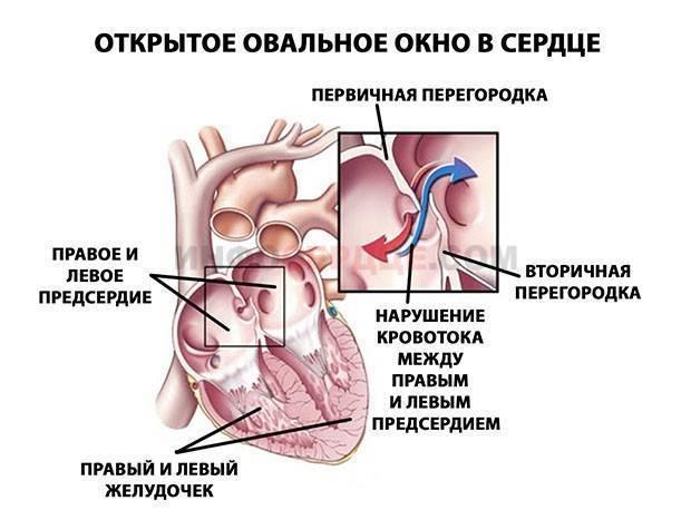 Открытое овальное окно в сердце у детей и взрослых: что это такое, причины, симптомы, когда нужно лечение и прогноз