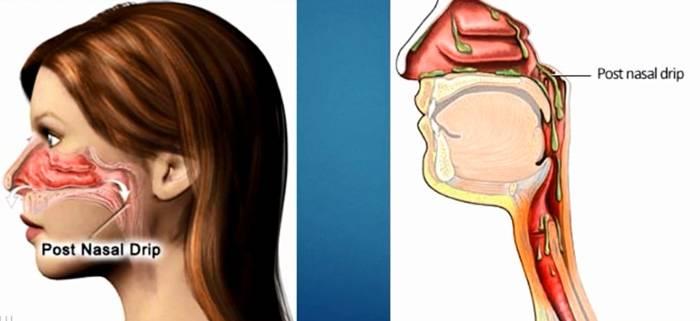 ➤ чем увлажнить слизистую носа ребенку?