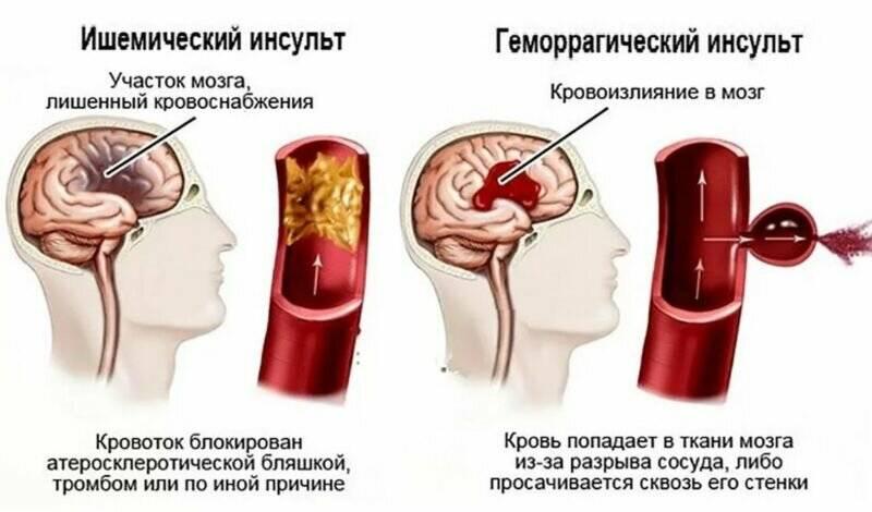 Геморрагический и ишемический инсульт: лечение
