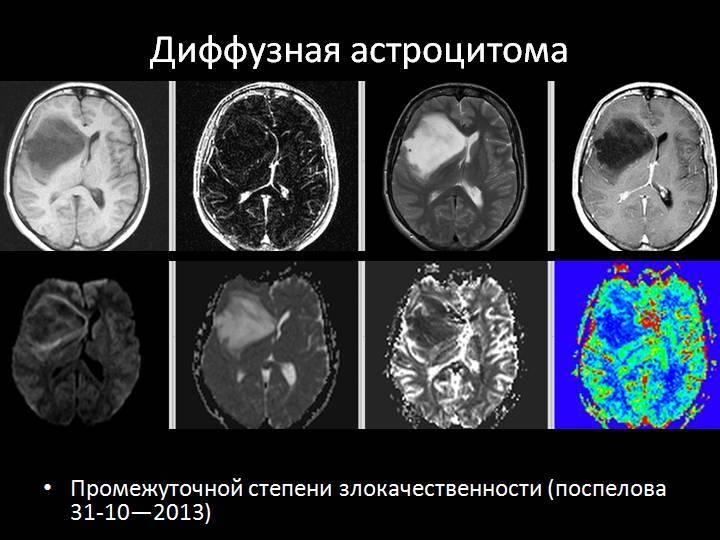 Опухоль головного мозга: причины, стадии, симптомы и методы лечения.