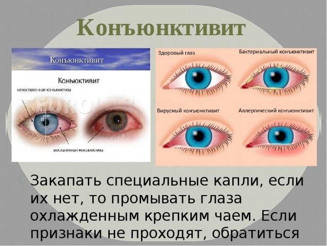 Лечение бактериального конъюнктивита у грудничка - энциклопедия ochkov.net