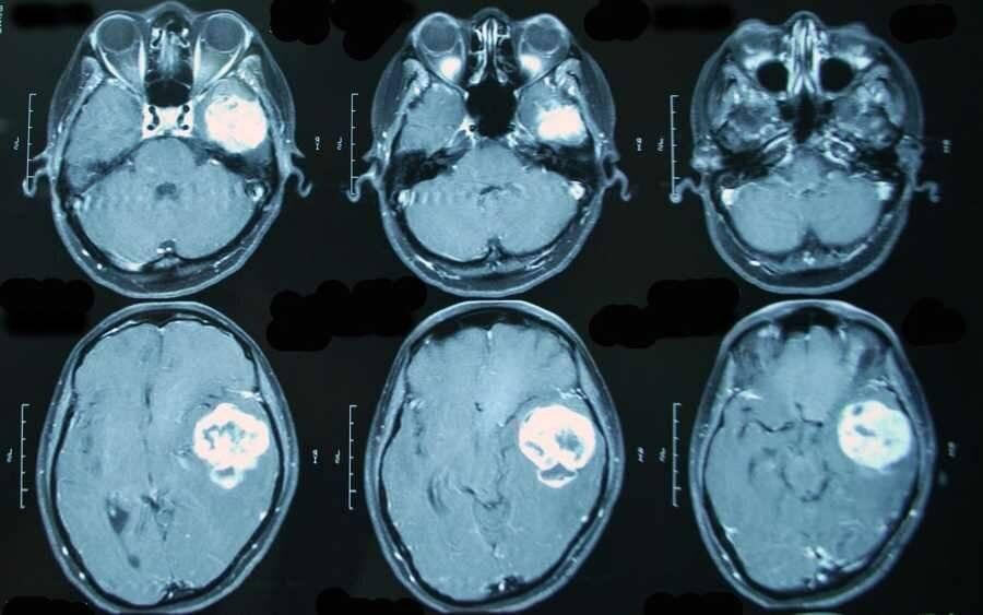 Опухоли мозга у детей: как не пропустить и что делать