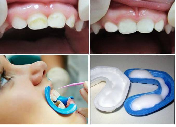 Целесообразность проведения глубокого фторирования зубов у детей