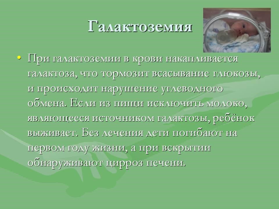 Галактоземия