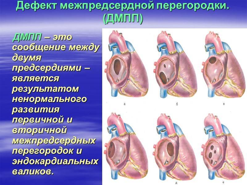 Шумы в сердце у детей