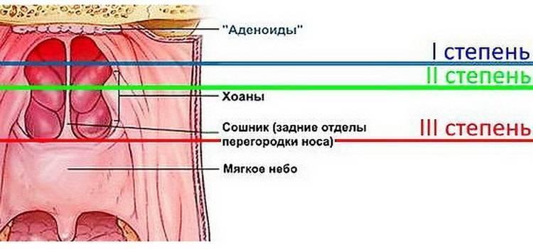 Пролежни больного: стадии, причины, профилактика, как лечить – напоправку