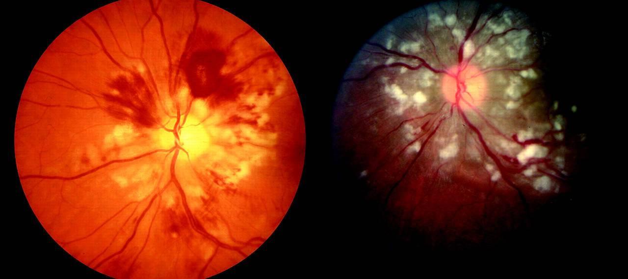 Ангиопатия сетчатки глаза: диагностика и лечение   клиника санта
