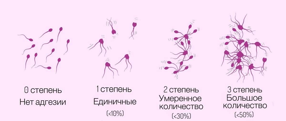 Олигозооспермия и беременность. разные степени? лечение.