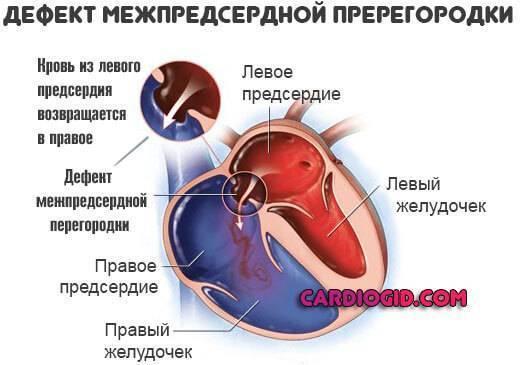 Эндоваскулярная хирургия | эндоваскулярное лечение врожденных пороков сердца в институте амосова
