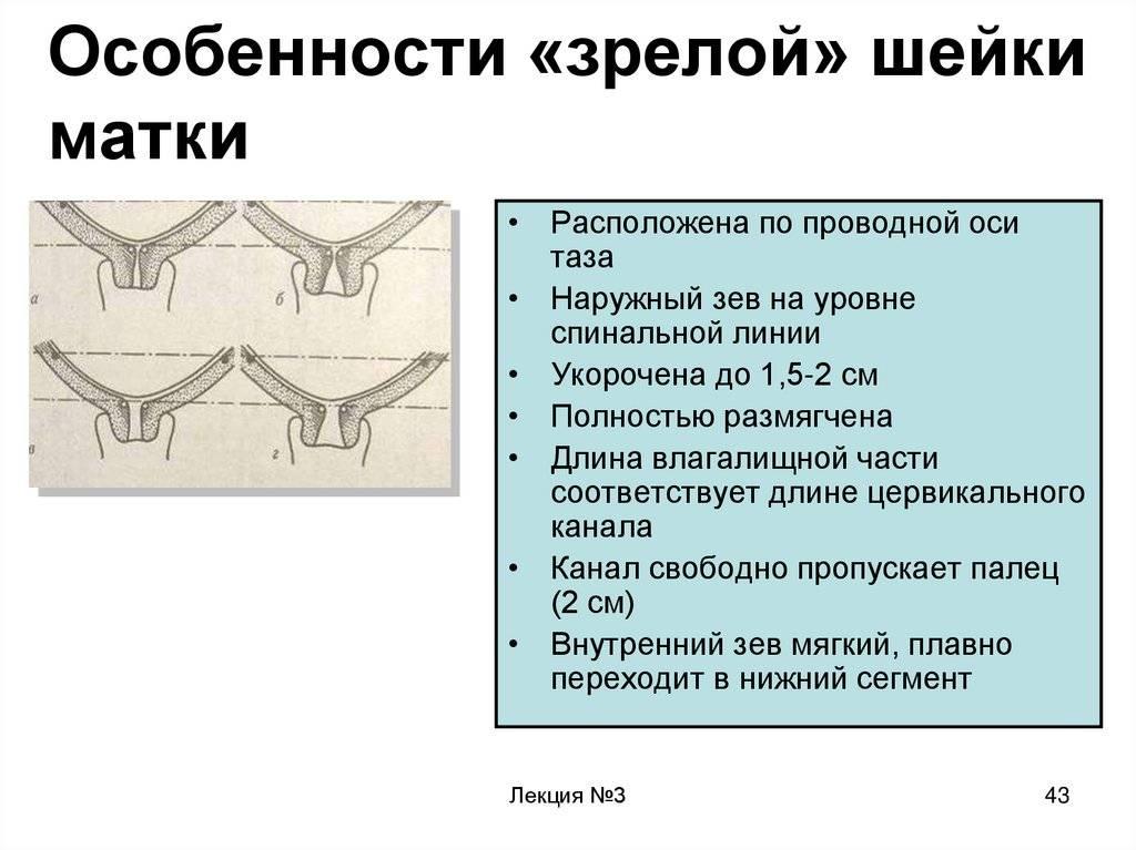 Особенности проведения узи шейки матки при беременности
