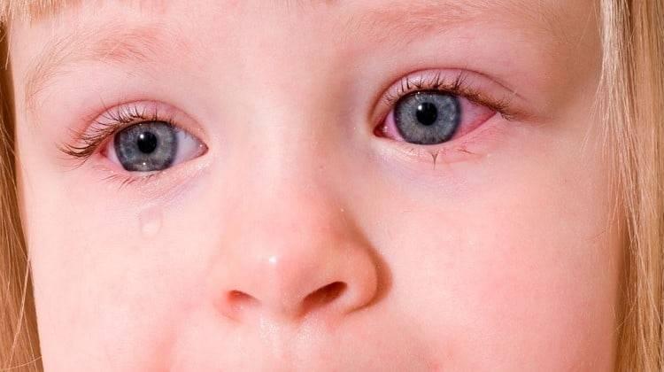 Симптомы и лечение вирусного и аллергического конъюнктивита – напоправку – напоправку