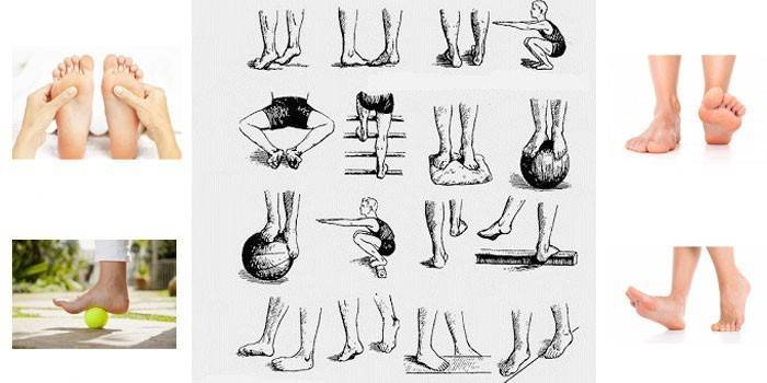 Халюс-вальгус - косточки на ногах: причины и лечение | медицинский дом odrex