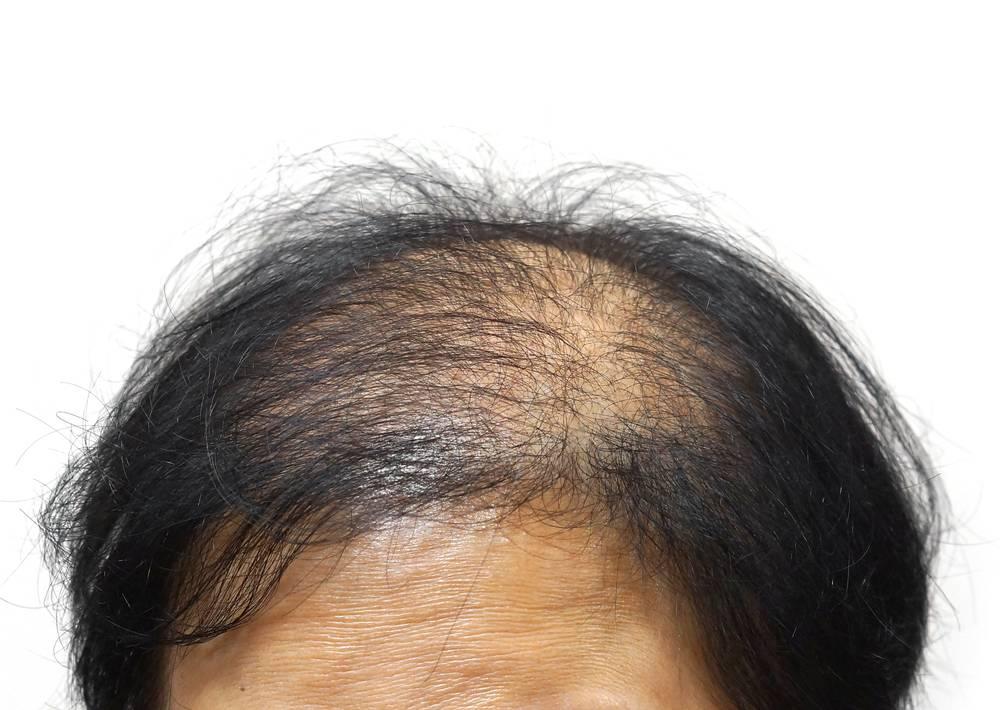 Выпадение волос у женщин: причины и лечение | университетская клиника