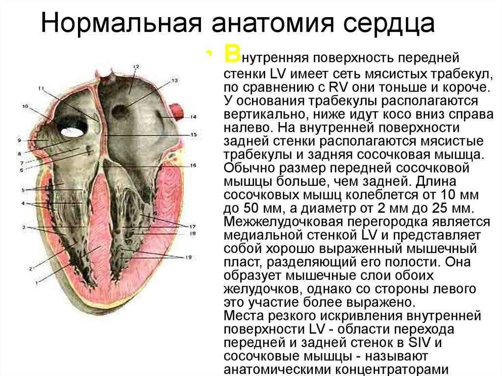 Дополнительная трабекула в левом желудочке у детей и взрослых