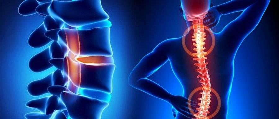 Боли в грудном отделе позвоночника. боль и жжение между лопатками. причины, лечение