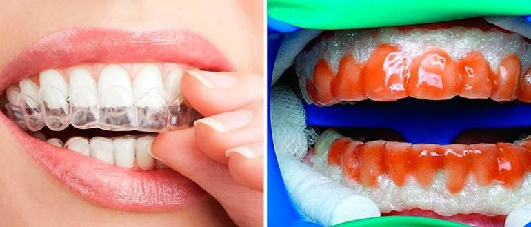 Зачем нужно фторирование зубов: польза и вред general import