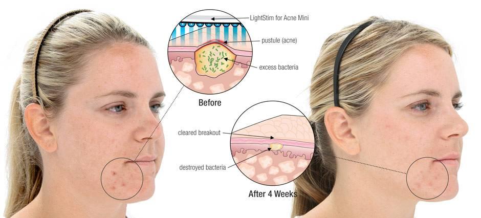 Розацеа на лице: причины и лечение