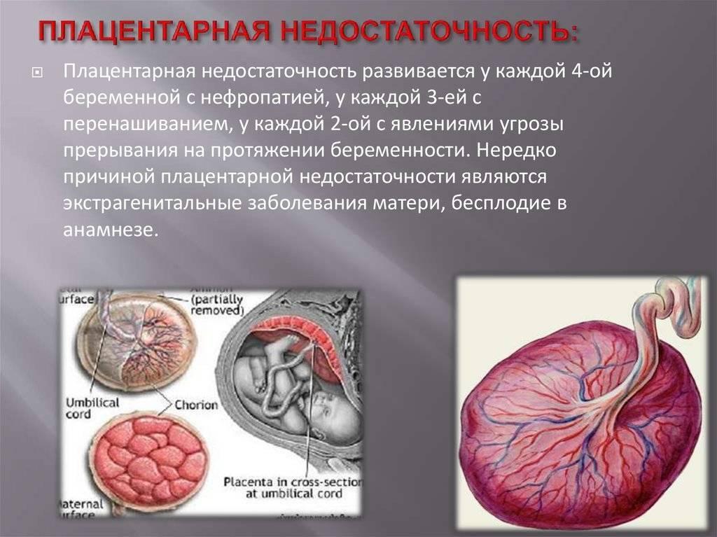 Низкая плацентация при беременности: симптомы, чем грозит и как лечить