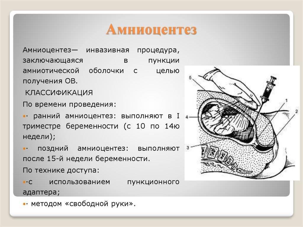 Беременность – пренатальный скрининг трисомий ii триместра беременности: исследования в лаборатории kdlmed