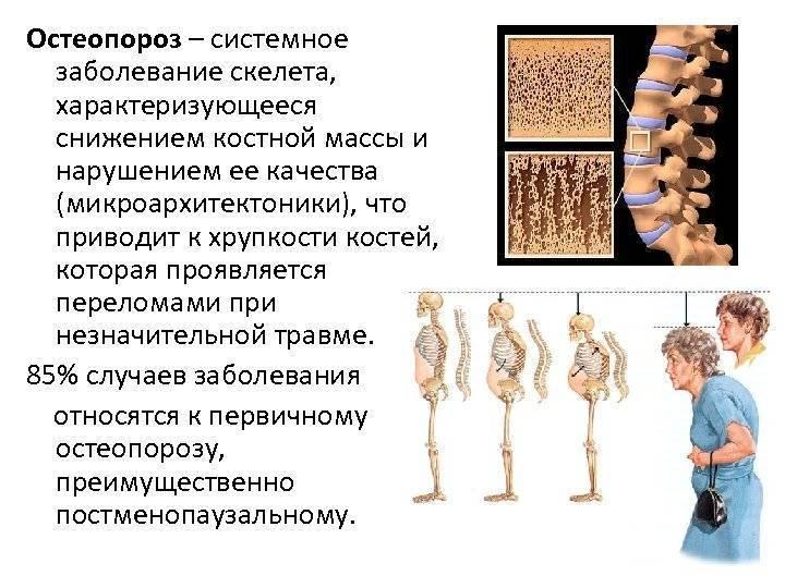 Остеопороз у детей: причины, симптомы, лечение