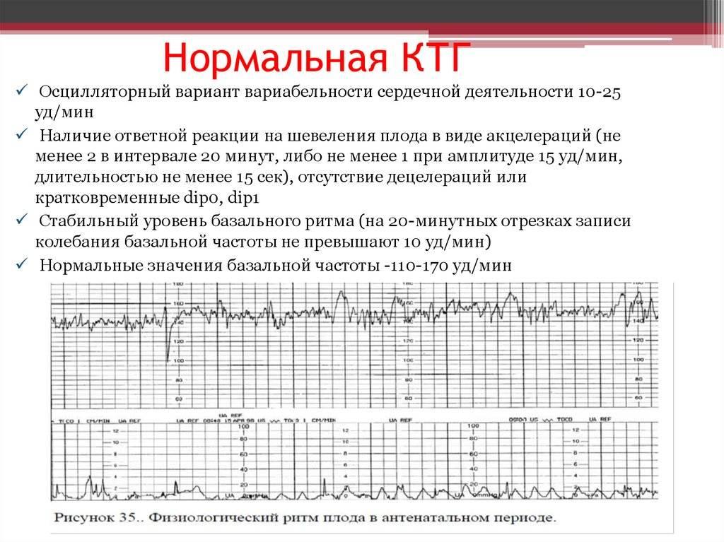 Сердцебиение плода.  норма, патология, контроль - наблюдение беременности.  здоровье