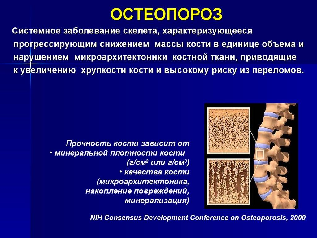 Остеопороз: симптомы, диагностика и лечение остеопороза. как снизить риск переломов: профилактика остеопороза