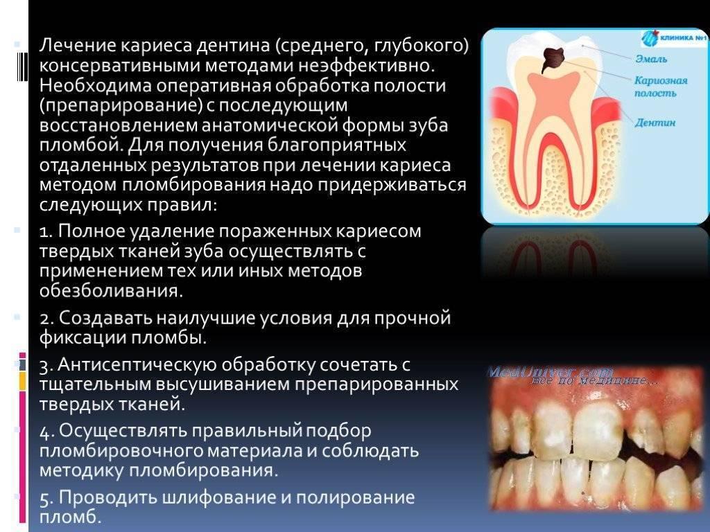 Кариес на молочных зубах. надо ли лечить?