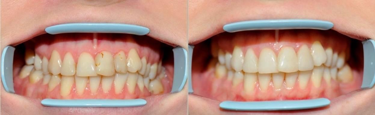 Фторирование зубов   восстановление эмали зубов — элитдентал м.