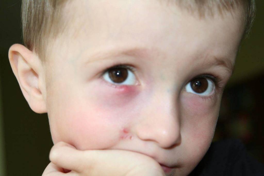 Ячмень у ребенка - как и чем лечить