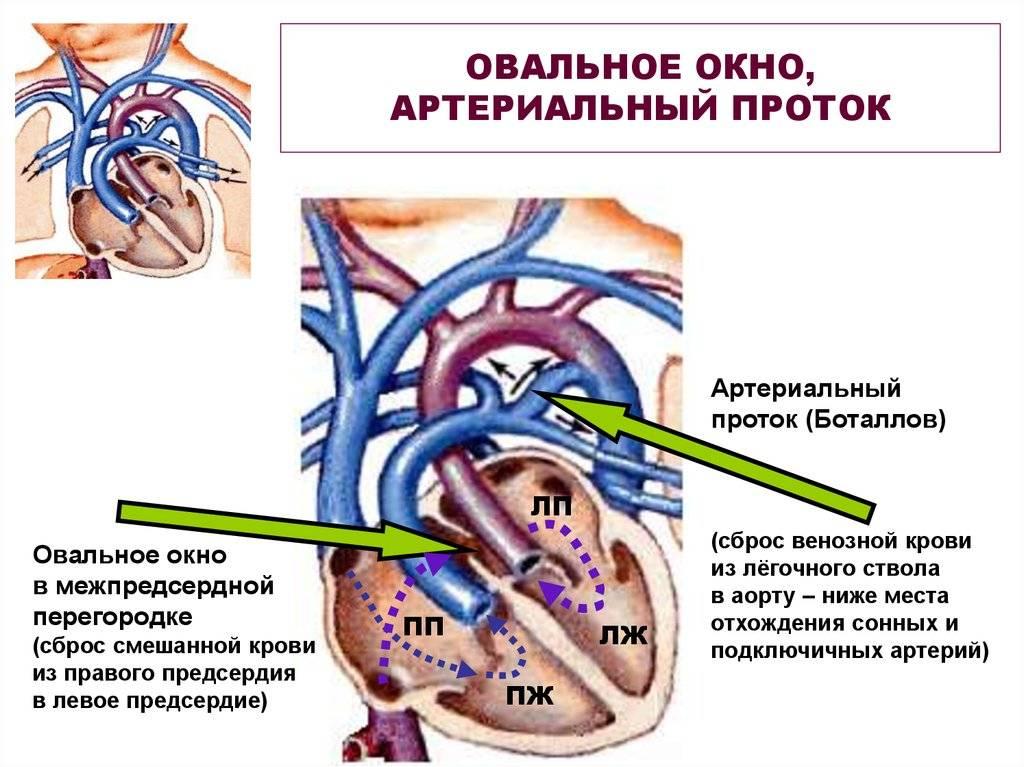 Закрытие дефекта межпредсердной перегородки – операция при дмпп