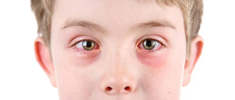 Конъюнктивит и заложенность носа у ребенка