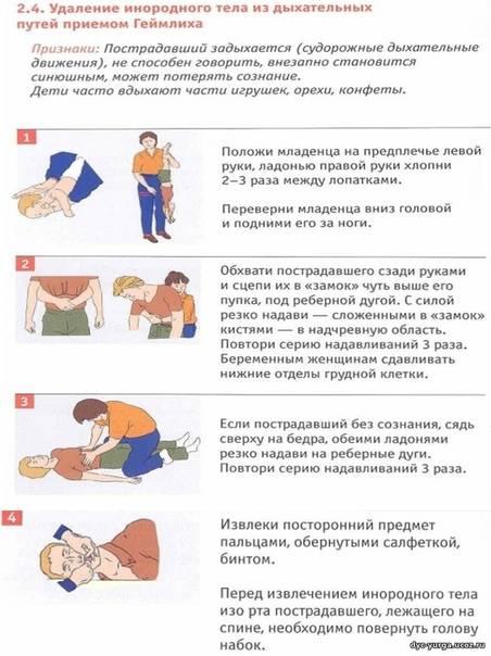 Что делать, если ребенок задыхается