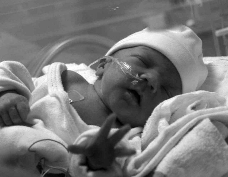 Врожденная или внутриутробная пневмония у новорожденных