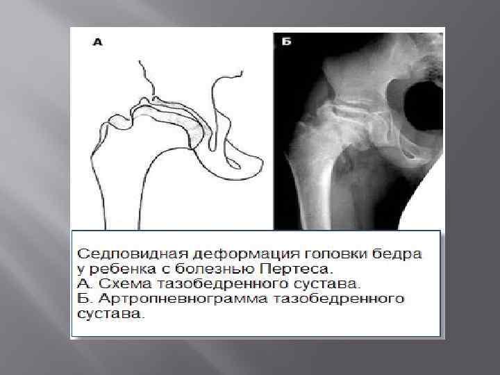 Лечение бурсита и синовита (причины, симптомы) | отделение платных медуслуг 62 гп г. москва м. аэропорт