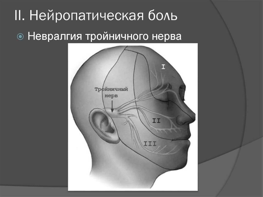 Невралгия тройничного нерва - симптомы болезни, профилактика и лечение невралгии тройничного нерва, причины заболевания и его диагностика на eurolab
