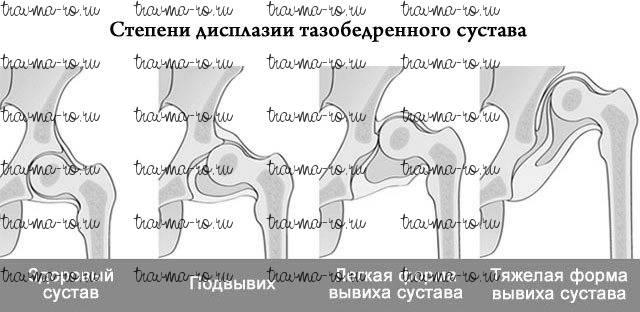 Дисплазия тазобедренных суставов: диагностика и лечение