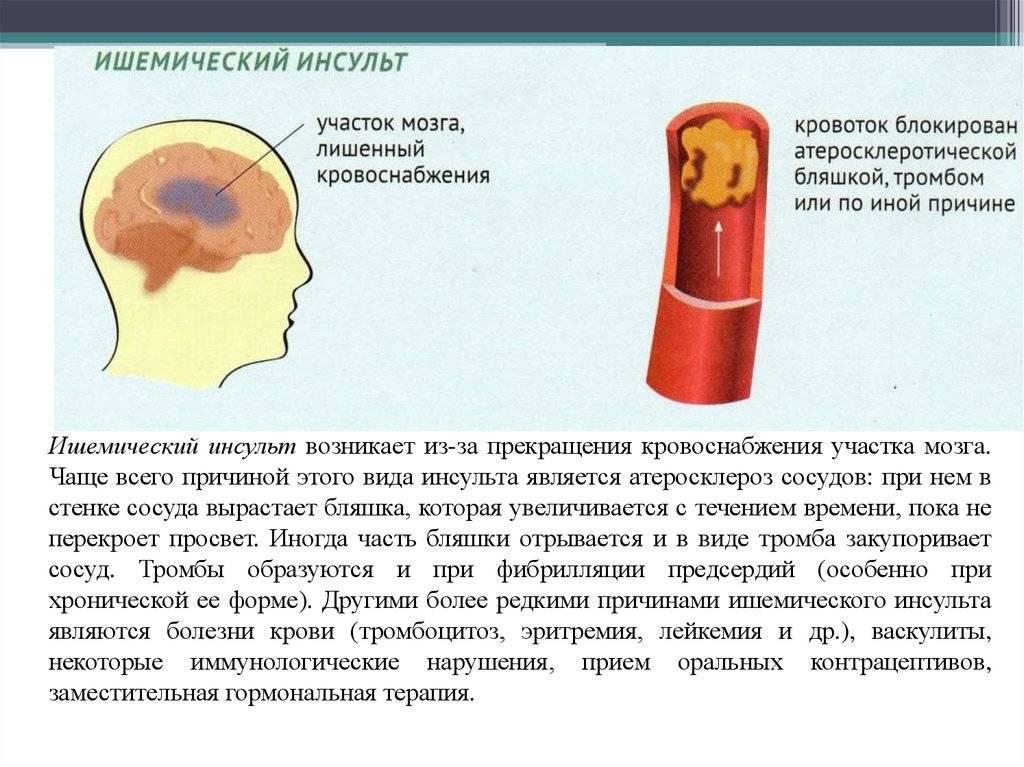 Геморрагический инсульт: причины и лечение   ким
